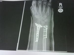 wrist3